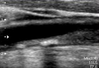 頚動脈 エコー プラーク 消える